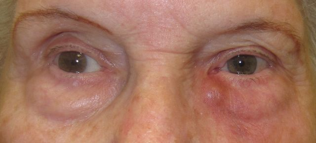 Acute Dacryocystitis - Lacrimal duct infection